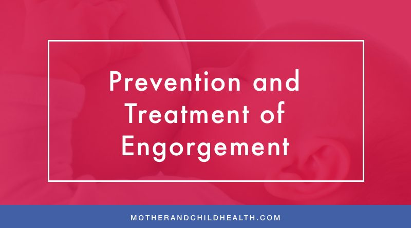 Prevention and Treatment of Engorgement